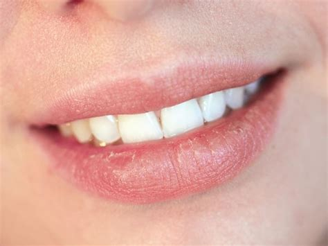 Sunburned Lips | Causes, Symptoms, And Home Remedies
