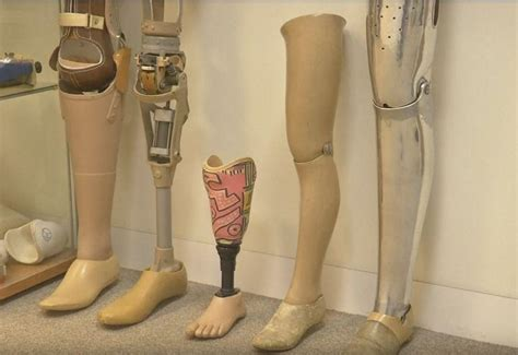 UK expat in Dubai is first to get 3D-printed prosthetic